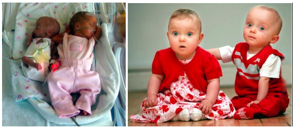 Big and small twins Harriet and James White