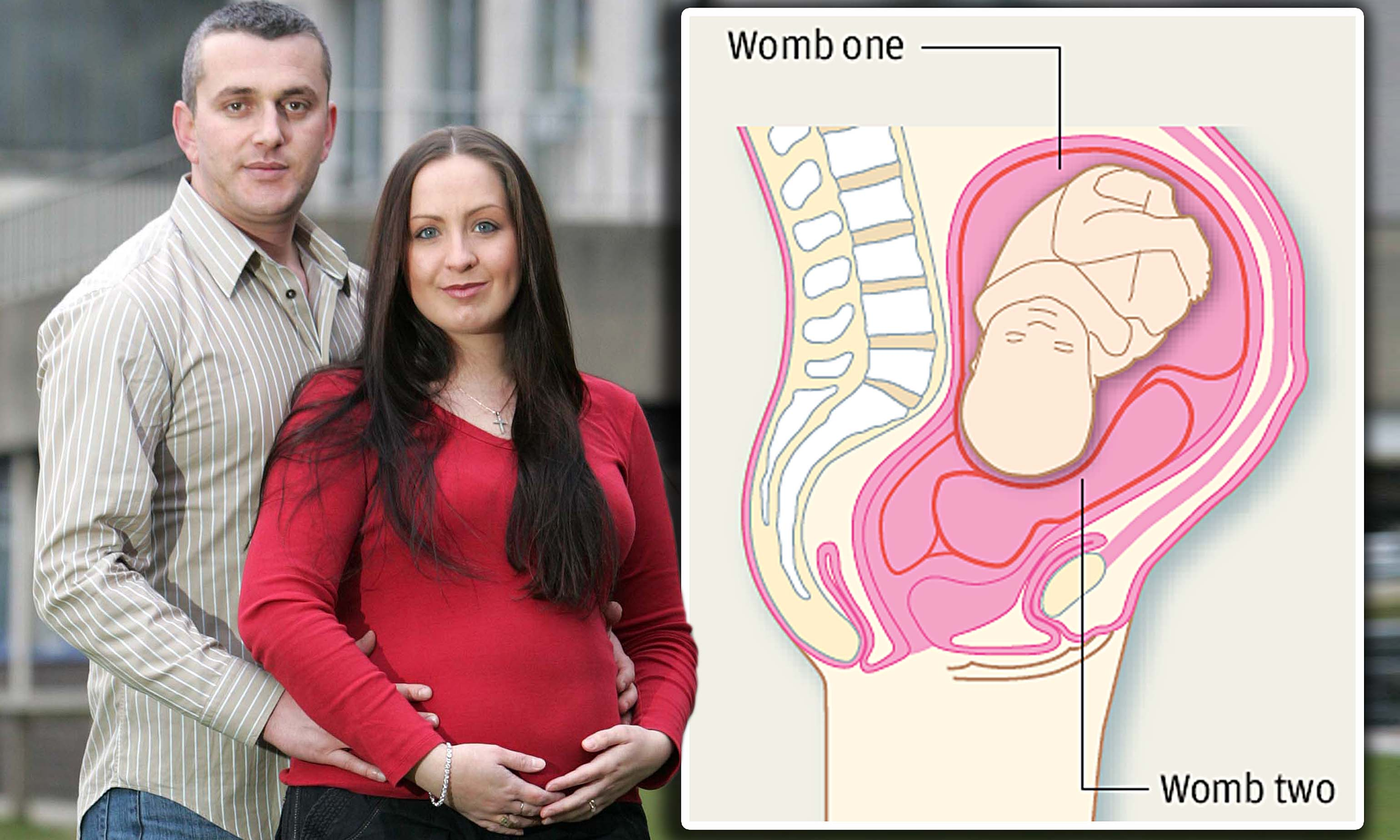UK Mom With Two Wombs Welcomes Baby Girl
