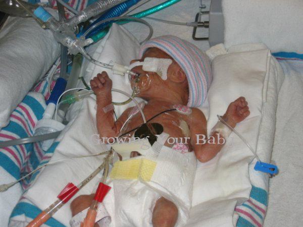 Preemie Profile: 26 Week Twins Peyton and Marc - Growing ...
