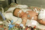 Research Suggests Stem cells Could Help Lung Development In Preemies