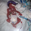 Preemie Profile: 26 Week Twins Brian & Rylan
