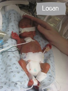 Preemie Profile: 23 Week Twins Olivia & Logan