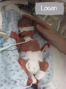 Preemie Profile: 23 Week Twins Olivia & Logan