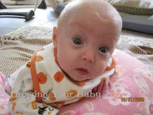 Preemie Profile: 24 Week Triplets Mary Louise, David & Kuylen