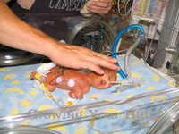 Prematurity Month: NICU Nurse Insight