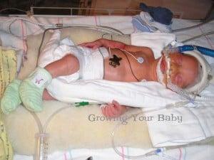 Preemie Profile: 32 Week Twins Jackson & Ava