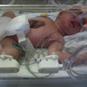 Little Fighter Born With Heart Outside Her Body