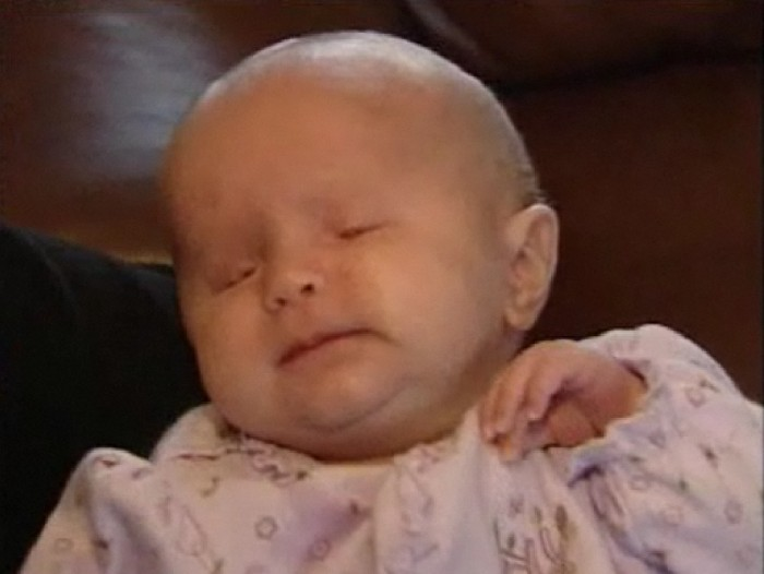 Baby in Florida Born Without Eyes