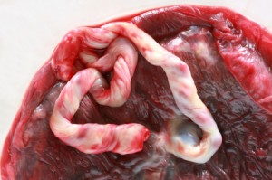 5 Interesting Things Women Do With Their Placenta