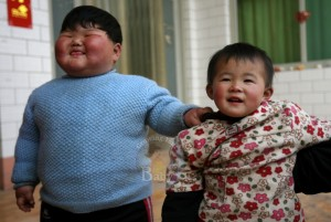 Chinese Toddler Weighs In At 90lbs