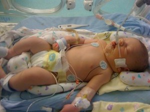 Baby Born With Birth Defect Denied Health Coverage
