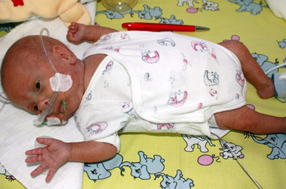 Tiny Baby Survives After Arriving Weighing  Just 9 Ounces