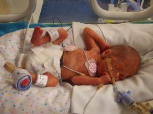 25 Week Baby Survives Unexpected Toilet Bowl Birth
