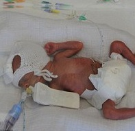 23 Week Twins Challenge The UK's Viability Threshold