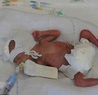23 Week Twins Challenge The UK's Viability Threshold
