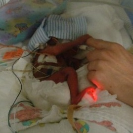 Prematurity Awareness Month ~ Meet Brothers 26 Weeker & Zander & 23 Weeker Quinn