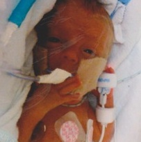 Prematurity Awareness Month – Meet 23 Week Twins Amanda & Dylan!