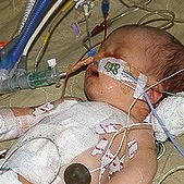 Preemie Born with Heart Condition Saved by Open Heart Surgery