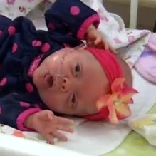 Botox Helps Save a Preemie's Life