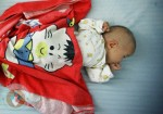 baby girl with 3 legs abandoned in China