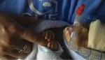 micro-preemie Kenna Moore CPAP
