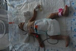 abandoned preemie in china