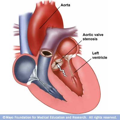 Aortic Stenosis Growing Your Baby