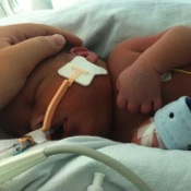 Doctors 'Freeze' Preemie to Save His Life