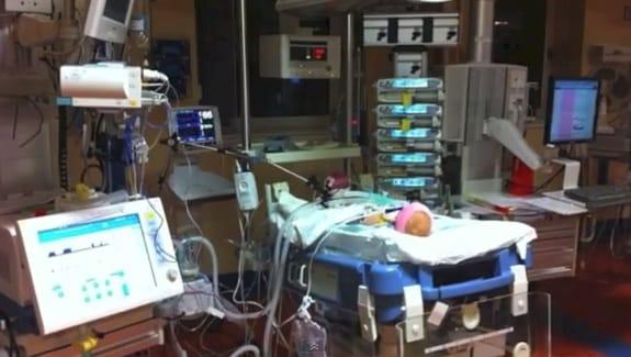 Caitlin Hartley after surgery for truncus arteriosus