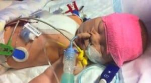 Caitlin Hartley truncus arteriosus