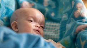Dominic Gundrum after surgery (Katherine C. Cohen/Boston Children's Hospital)