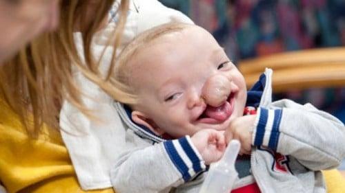 Dominic Gundrum before surgery (Katherine C. Cohen/Boston Children's Hospital)