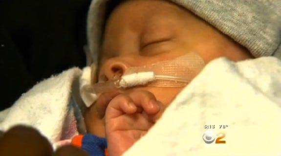 26 week  preemie baby born in his amniotic sac