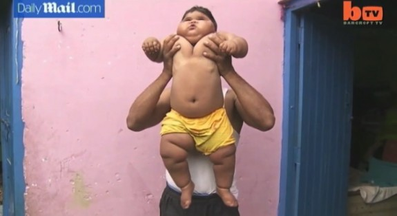 10 month old Aliya Saleem weighs 40lbs