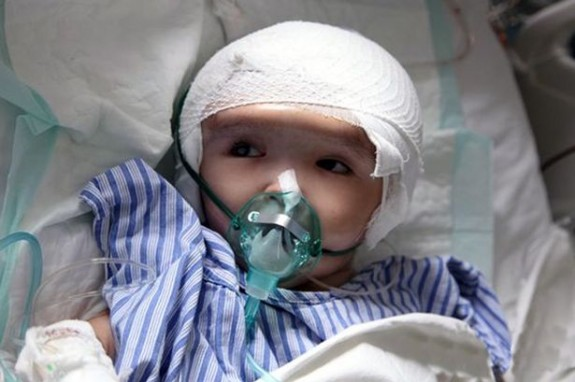 Baby han han after surgery with 3d printed skull