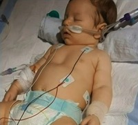 Baby Recovering After Scary and Nearly Deadly Case of Botulism
