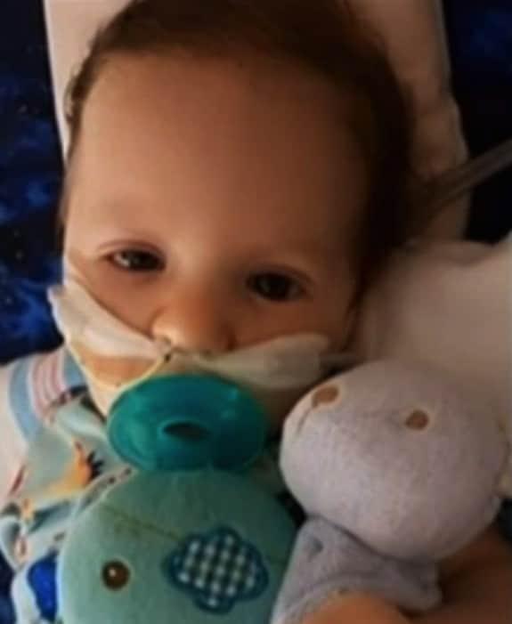 Baby struck with Botulism- Benjamin Shell