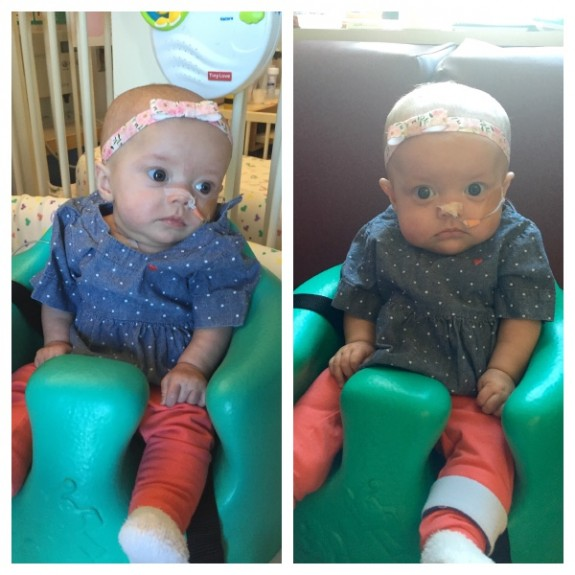 Twins with cancer Kenedi and Kendal Breyfogle