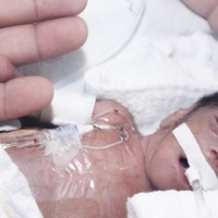 Study Finds Improved Survival Rates for Preemies