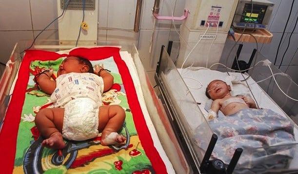 13lb baby born in india