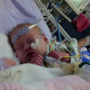 Ruby Callaghan hours before her life-saving heart transplant