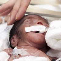 Study:  Babies Born Prematurely More Prone To Developing Autism