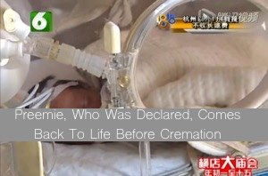 Preemie-Who-Was-Declared-Dead-Comes-Back-To-Life-Before-Cremation 300
