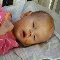 Ohio Baby Fighting Rare Brain Tumor