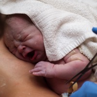 Infant Delivery Method Linked to Gut Bacteria