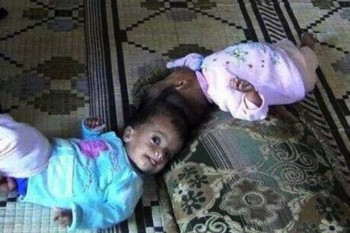 Sisters Taqi and Yaqin are separated in 10 hour surgery
