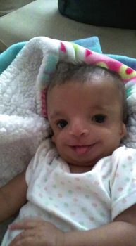 Abigail Lynn Fisher Treatcher Collins syndrome