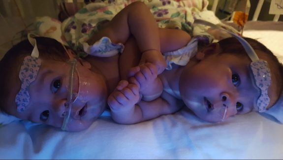 Conjoined Twins Scarlett and Savannah