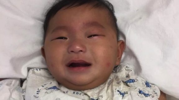 Baby with Cerebral Palsy abandoned in Hong Kong