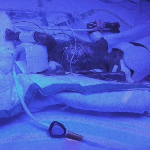 13 ounce 23 week baby Eirianna
